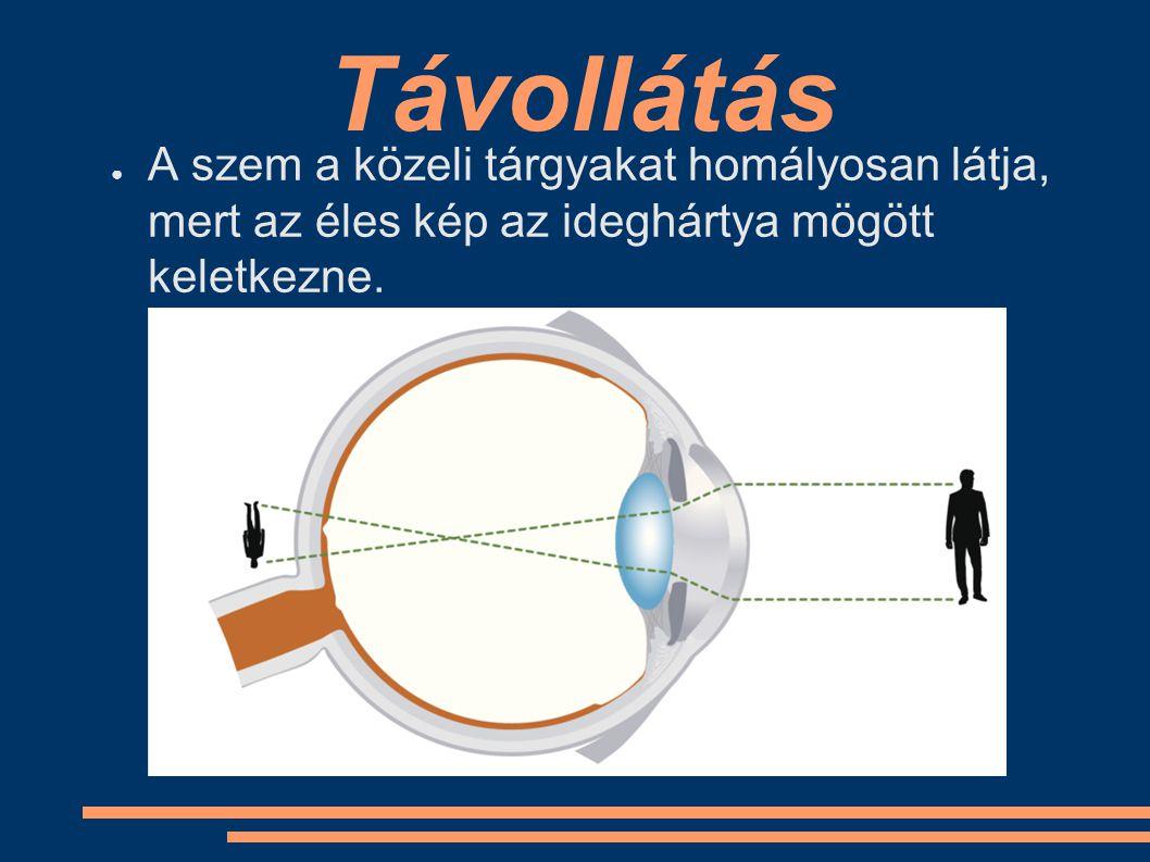 Távollátás ● A szem a közeli tárgyakat homályosan látja, mert az éles kép az ideghártya mögött keletkezne.