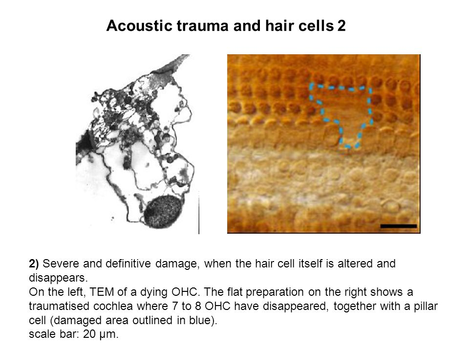 2) Severe and definitive damage, when the hair cell itself is altered and disappears.