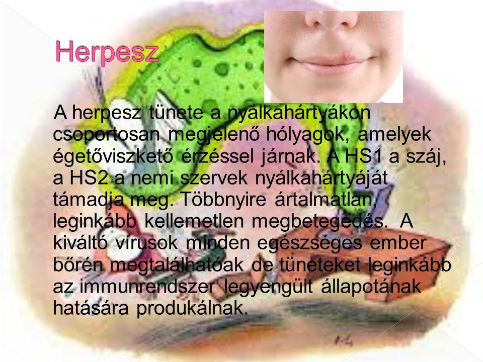A herpesz tünete a nyálkahártyákon csoportosan megjelenő hólyagok, amelyek égetőviszkető érzéssel járnak. A HS1 a száj, a HS2 a nemi szervek nyálkahár