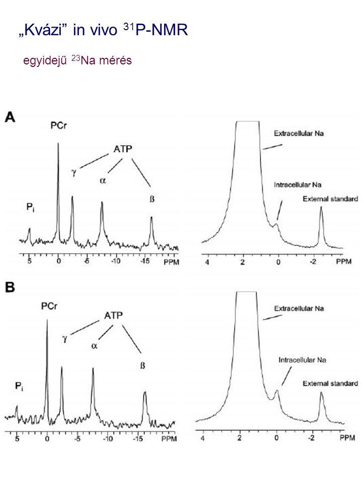 """""""Kvázi"""" in vivo 31 P-NMR egyidejű 23 Na mérés"""