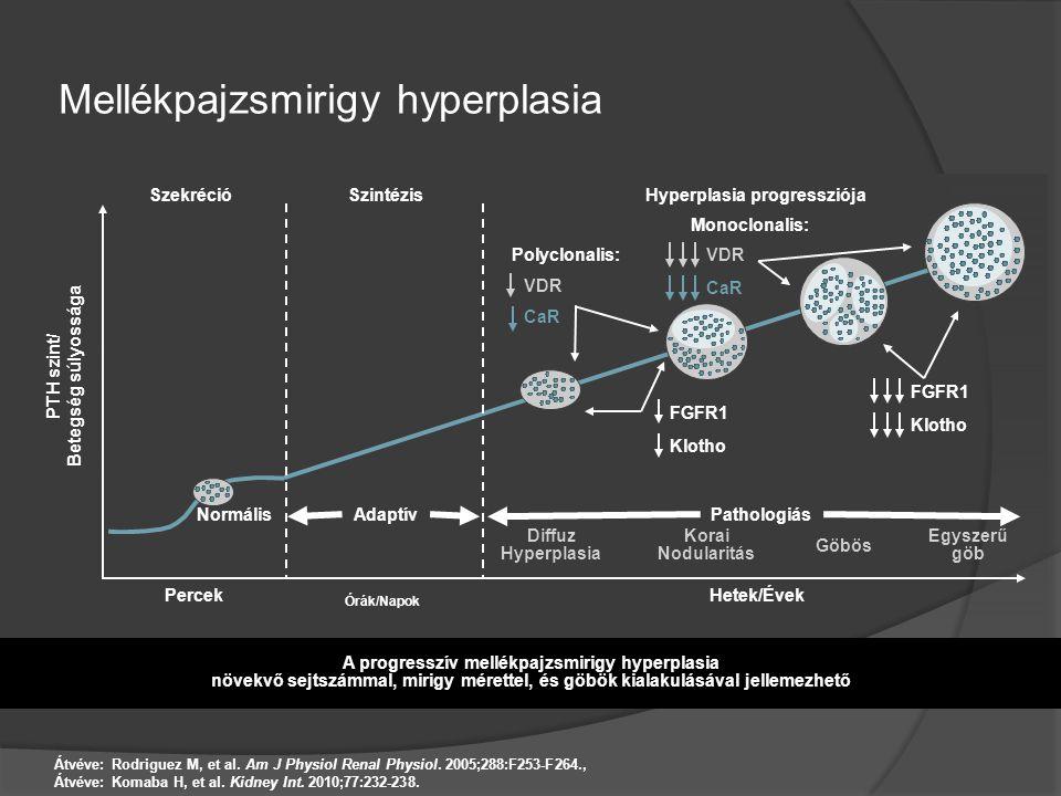 Mellékpajzsmirigy hyperplasia Átvéve: Rodriguez M, et al. Am J Physiol Renal Physiol. 2005;288:F253-F264., Átvéve: Komaba H, et al. Kidney Int. 2010;7