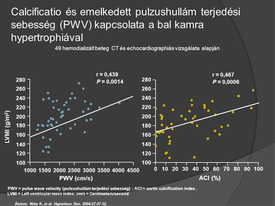 Calcificatio és emelkedett pulzushullám terjedési sebesség (PWV) kapcsolata a bal kamra hypertrophiával Átvéve: Nitta K, et al. Hypertens Res. 2004;27
