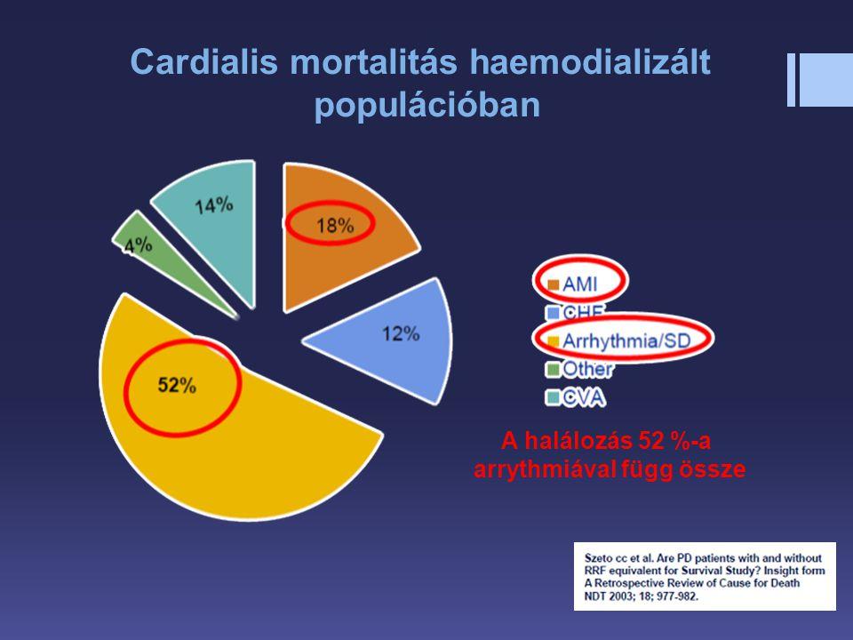 Cardialis mortalitás haemodializált populációban A halálozás 52 %-a arrythmiával függ össze