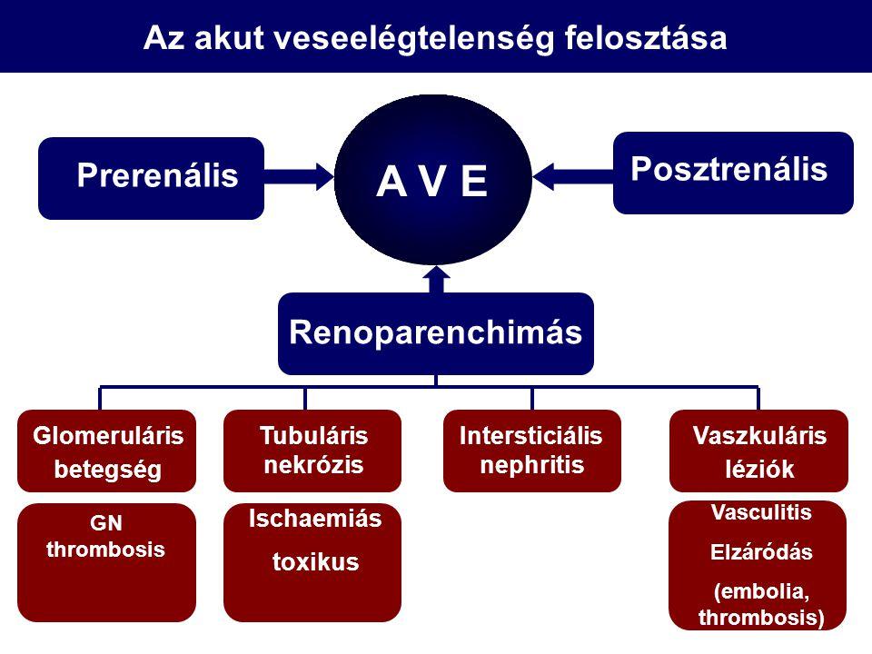 Glomeruláris betegség Az akut veseelégtelenség felosztása Prerenális Renoparenchimás Posztrenális GN thrombosis A V E Ischaemiás toxikus Intersticiáli