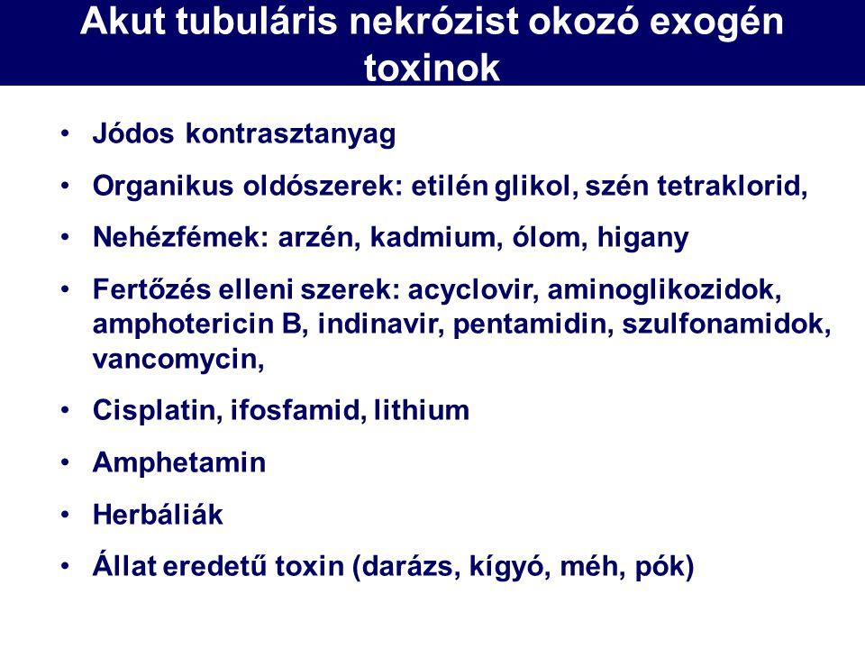 Akut tubuláris nekrózist okozó exogén toxinok Jódos kontrasztanyag Organikus oldószerek: etilén glikol, szén tetraklorid, Nehézfémek: arzén, kadmium,