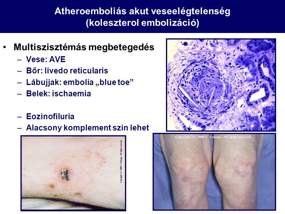"""Multiszisztémás megbetegedés –Vese: AVE –Bőr: livedo reticularis –Lábujjak: embolia """"blue toe"""" –Belek: ischaemia –Eozinofiluria –Alacsony komplement s"""