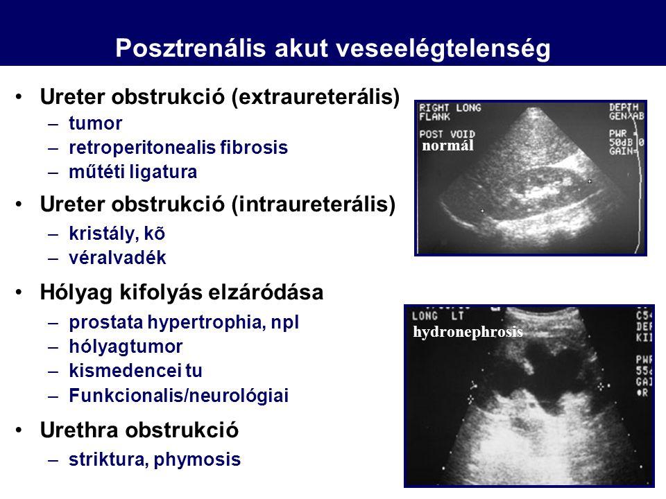 Ureter obstrukció (extraureterális) –tumor –retroperitonealis fibrosis –műtéti ligatura Ureter obstrukció (intraureterális) –kristály, kõ –véralvadék