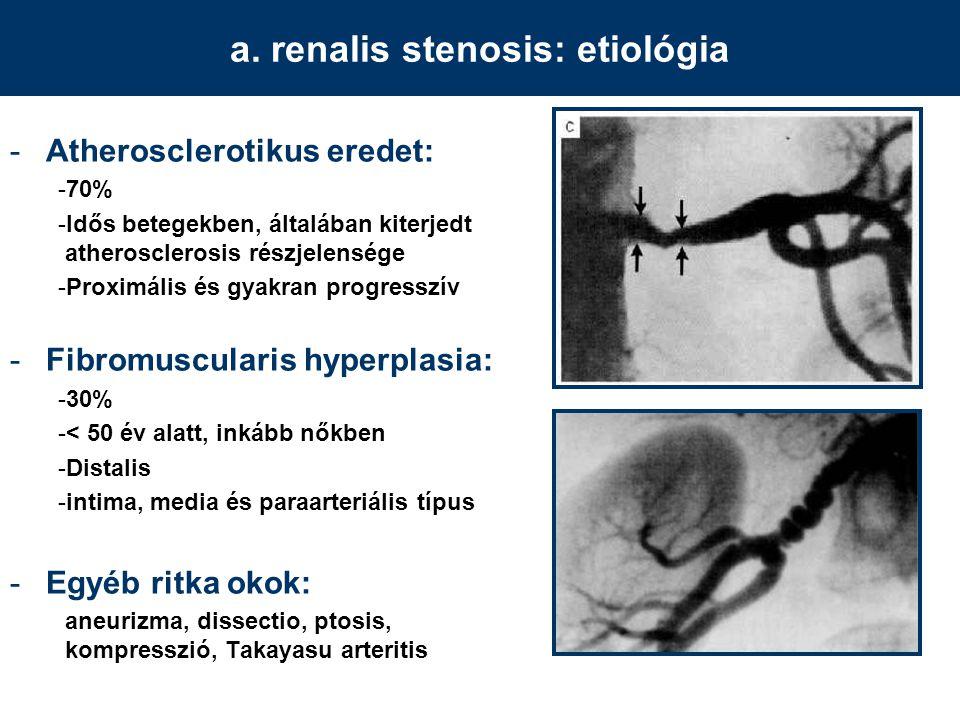 a. renalis stenosis: etiológia -Atherosclerotikus eredet: -70% -Idős betegekben, általában kiterjedt atherosclerosis részjelensége -Proximális és gyak