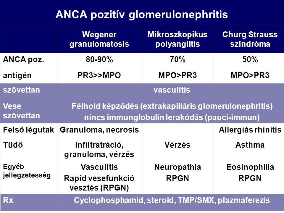 ANCA pozitív glomerulonephritis Wegener granulomatosis Mikroszkopikus polyangiitis Churg Strauss szindróma ANCA poz.80-90%70%50% antigénPR3>>MPOMPO>PR