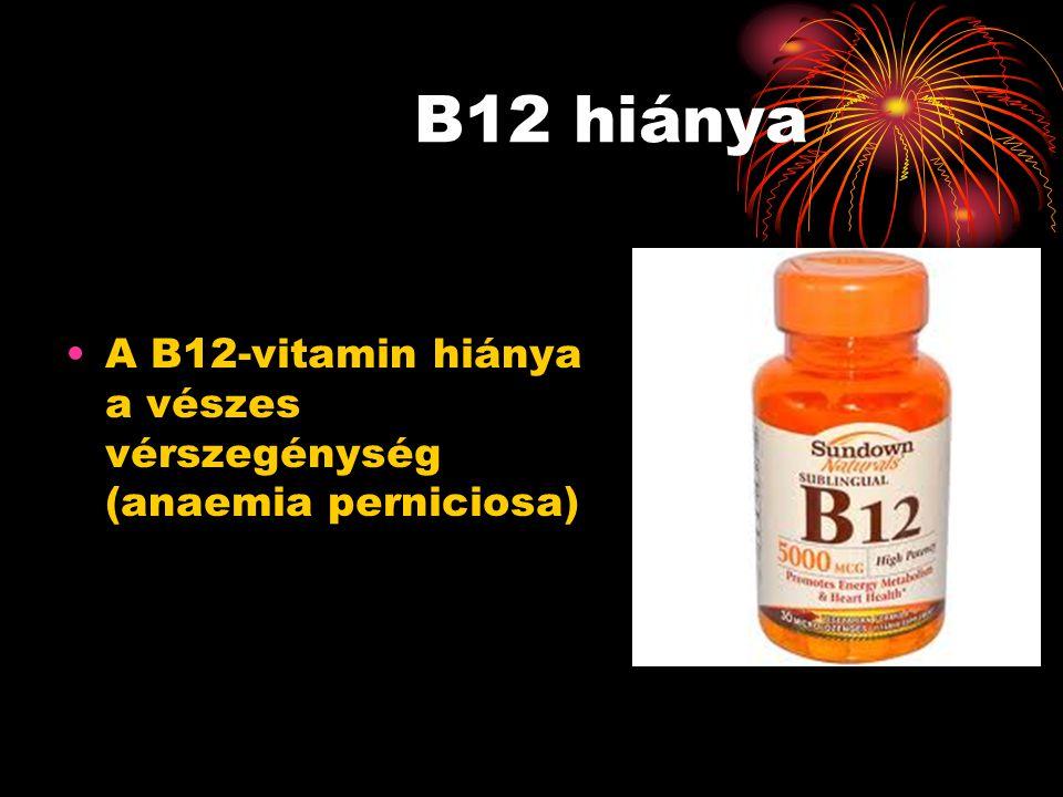 B12 hiánya A B12-vitamin hiánya a vészes vérszegénység (anaemia perniciosa)