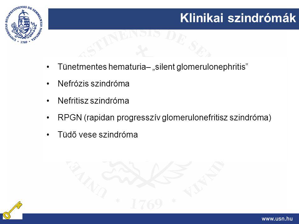 """Klinikai szindrómák Tünetmentes hematuria– """"silent glomerulonephritis"""" Nefrózis szindróma Nefritisz szindróma RPGN (rapidan progresszív glomerulonefri"""