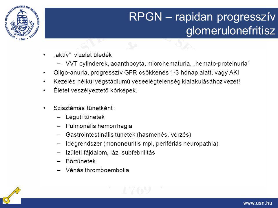 """""""aktív"""" vizelet üledék –VVT cylinderek, acanthocyta, microhematuria, """"hemato-proteinuria"""" Oligo-anuria, progresszív GFR csökkenés 1-3 hónap alatt, vag"""