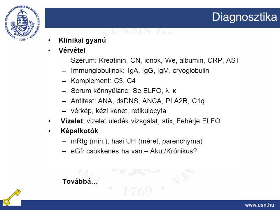 Diagnosztika Klinikai gyanú Vérvétel –Szérum: Kreatinin, CN, ionok, We, albumin, CRP, AST –Immunglobulinok: IgA, IgG, IgM, cryoglobulin –Komplement: C