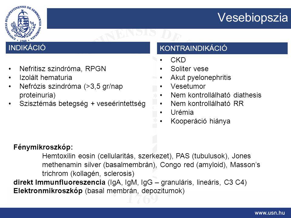 Nefritisz szindróma, RPGN Izolált hematuria Nefrózis szindróma (>3,5 gr/nap proteinuria) Szisztémás betegség + veseérintettség CKD Soliter vese Akut p