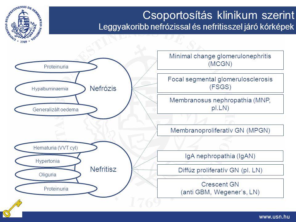 Minimal change glomerulonephritis (MCGN) Focal segmental glomerulosclerosis (FSGS) Membranosus nephropathia (MNP, pl.LN) IgA nephropathia (IgAN) Diffú