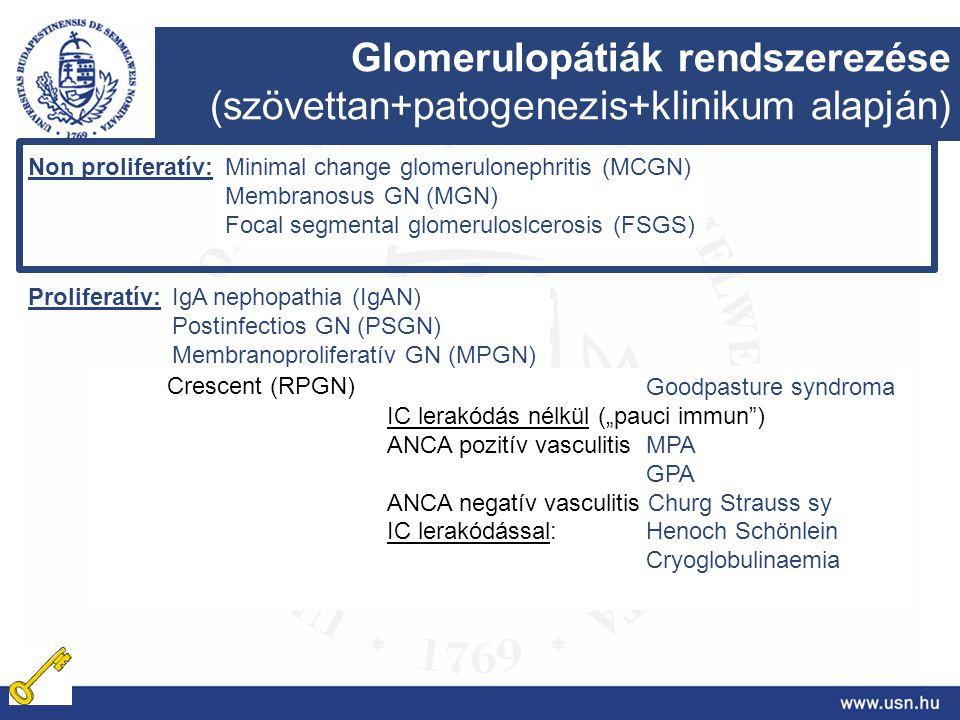 Glomerulopátiák rendszerezése (szövettan+patogenezis+klinikum alapján) Non proliferatív: Proliferatív: Minimal change glomerulonephritis (MCGN) Membra