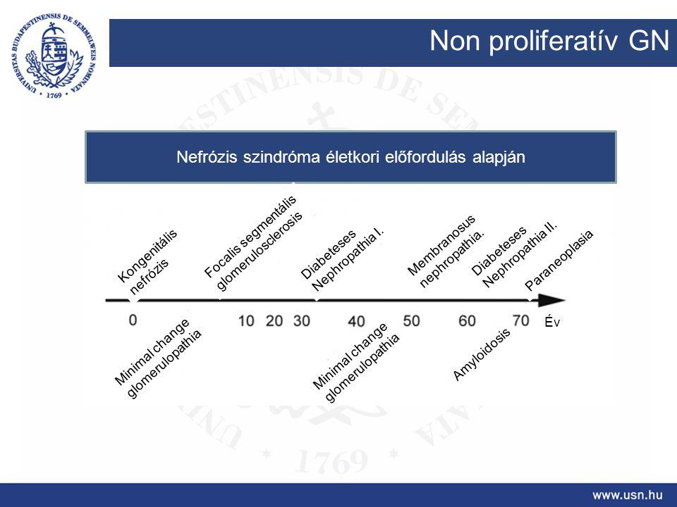 Non proliferatív GN Nefrózis szindróma életkori előfordulás alapján Kongenitális nefrózis Focalis segmentális glomerulosclerosis Diabeteses Nephropath