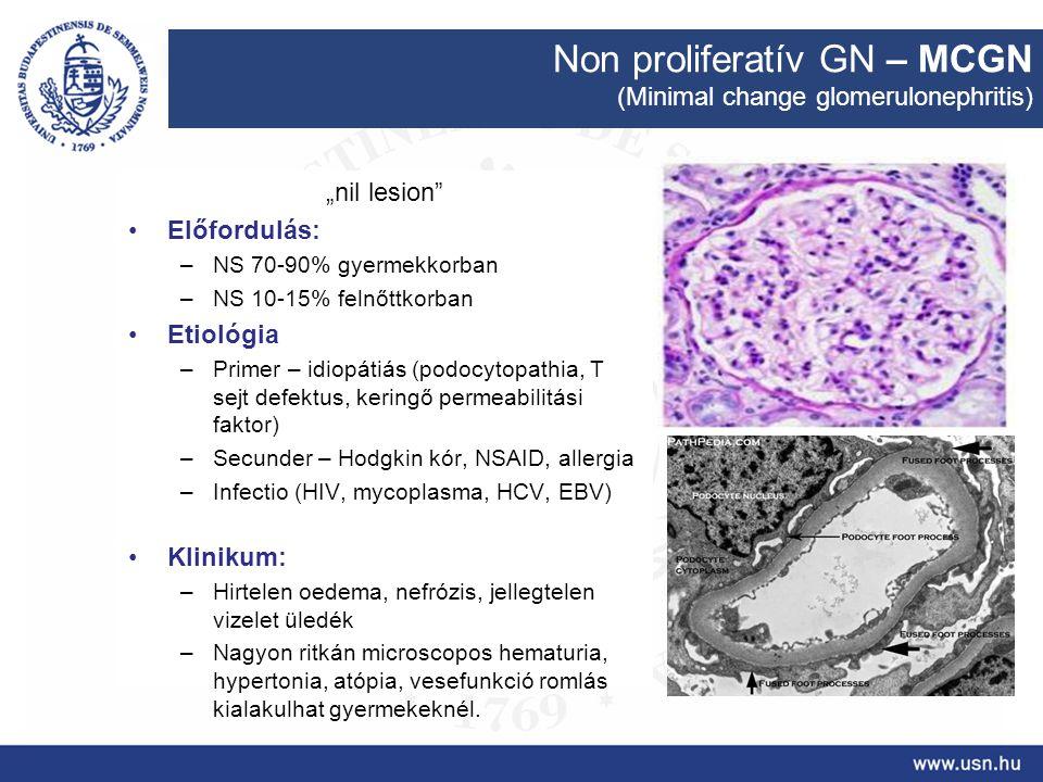 """Non proliferatív GN – MCGN (Minimal change glomerulonephritis) """"nil lesion"""" Előfordulás: –NS 70-90% gyermekkorban –NS 10-15% felnőttkorban Etiológia –"""