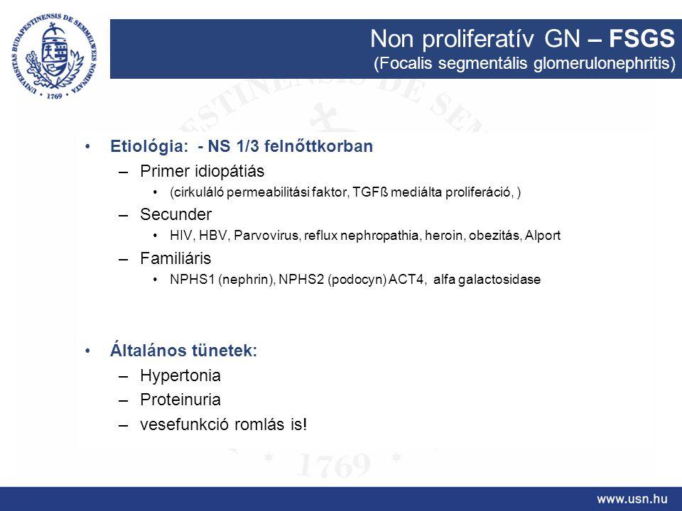 Non proliferatív GN – FSGS (Focalis segmentális glomerulonephritis) Etiológia: - NS 1/3 felnőttkorban –Primer idiopátiás (cirkuláló permeabilitási fak