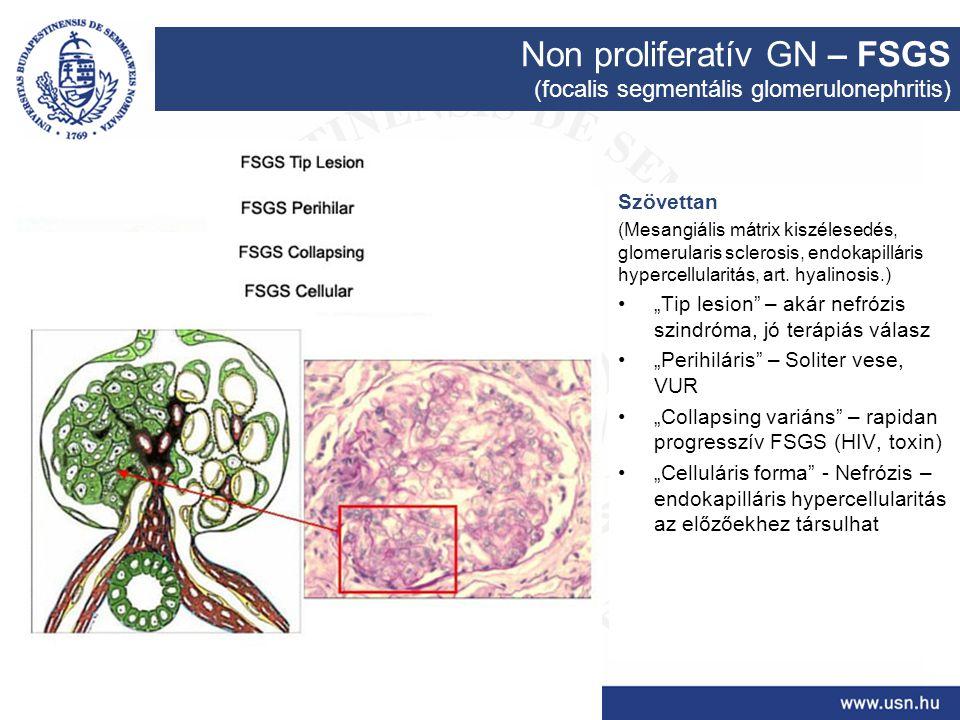 Non proliferatív GN – FSGS (focalis segmentális glomerulonephritis) Szövettan (Mesangiális mátrix kiszélesedés, glomerularis sclerosis, endokapilláris