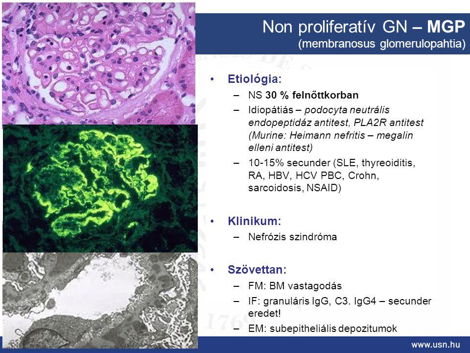 Non proliferatív GN – MGP (membranosus glomerulopahtia) Etiológia: –NS 30 % felnőttkorban –Idiopátiás – podocyta neutrális endopeptidáz antitest, PLA2