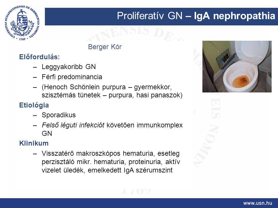 Proliferatív GN – IgA nephropathia Berger Kór Előfordulás: –Leggyakoribb GN –Férfi predominancia –(Henoch Schönlein purpura – gyermekkor, szisztémás t