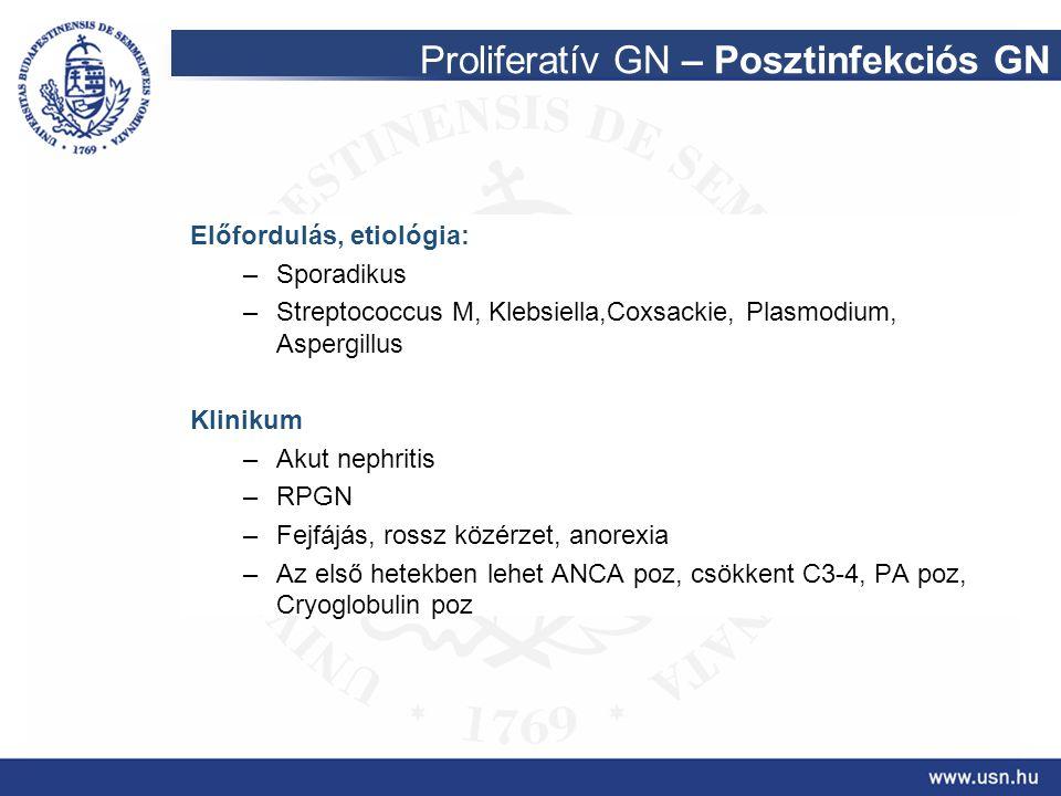 Proliferatív GN – Posztinfekciós GN Előfordulás, etiológia: –Sporadikus –Streptococcus M, Klebsiella,Coxsackie, Plasmodium, Aspergillus Klinikum –Akut