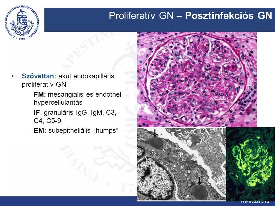 Proliferatív GN – Posztinfekciós GN Szövettan: akut endokapilláris proliferatív GN –FM: mesangialis és endothel hypercellularitás –IF: granuláris IgG,