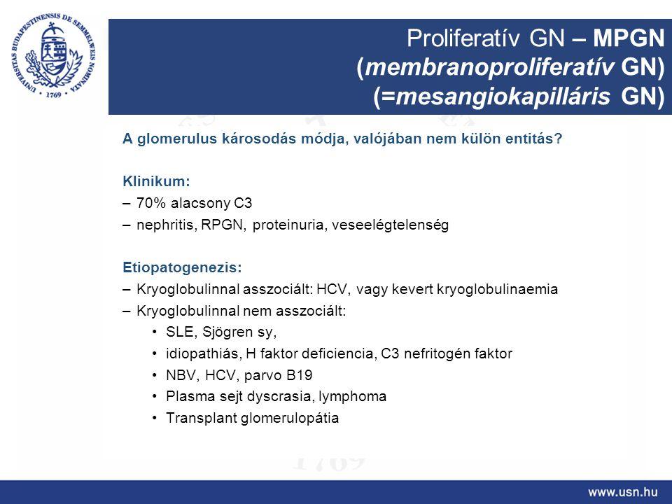 Proliferatív GN – MPGN (membranoproliferatív GN) (=mesangiokapilláris GN) A glomerulus károsodás módja, valójában nem külön entitás? Klinikum: –70% al