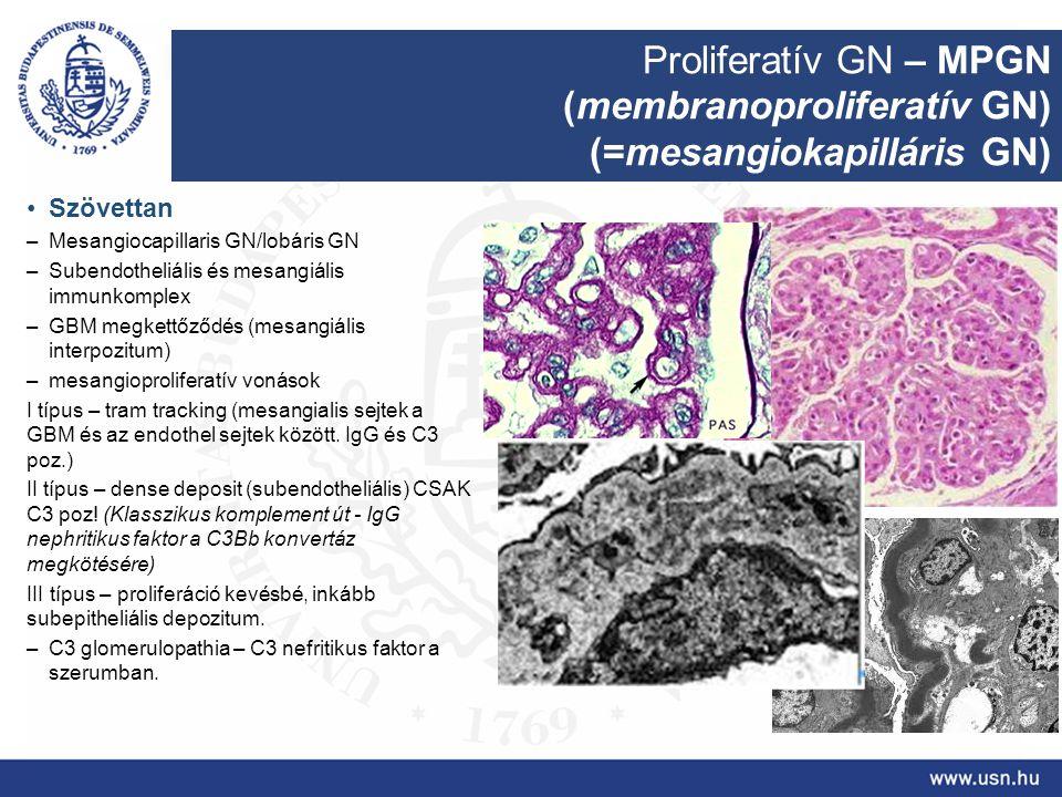 Proliferatív GN – MPGN (membranoproliferatív GN) (=mesangiokapilláris GN) Szövettan –Mesangiocapillaris GN/lobáris GN –Subendotheliális és mesangiális