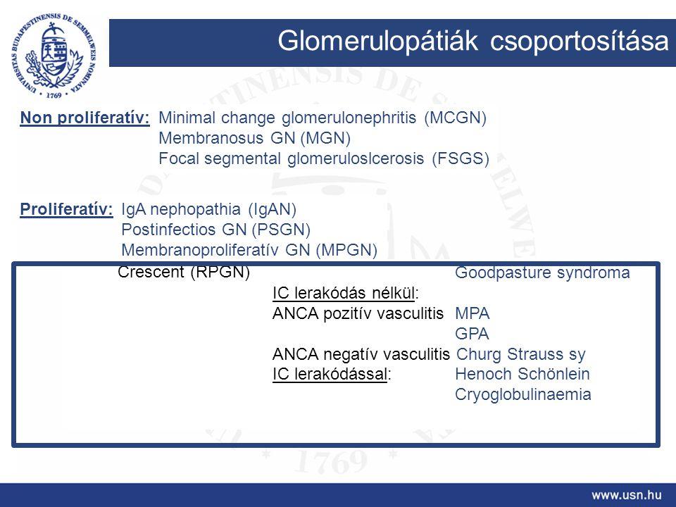 Glomerulopátiák csoportosítása Non proliferatív: Proliferatív: Minimal change glomerulonephritis (MCGN) Membranosus GN (MGN) Focal segmental glomerulo