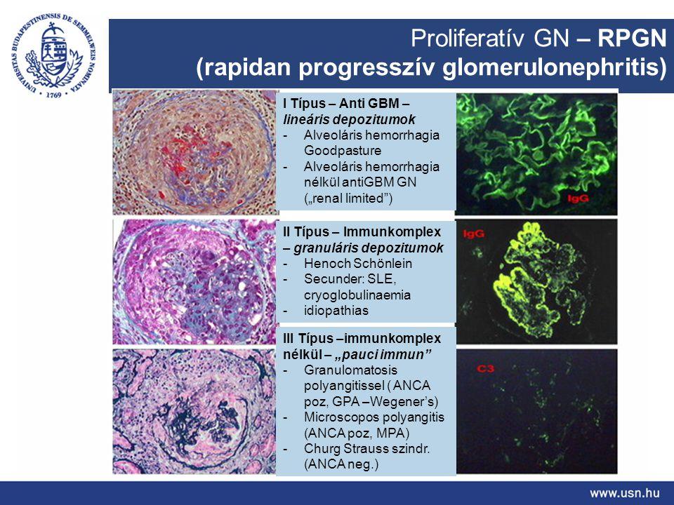 Proliferatív GN – RPGN (rapidan progresszív glomerulonephritis) I Típus – Anti GBM – lineáris depozitumok -Alveoláris hemorrhagia Goodpasture -Alveolá