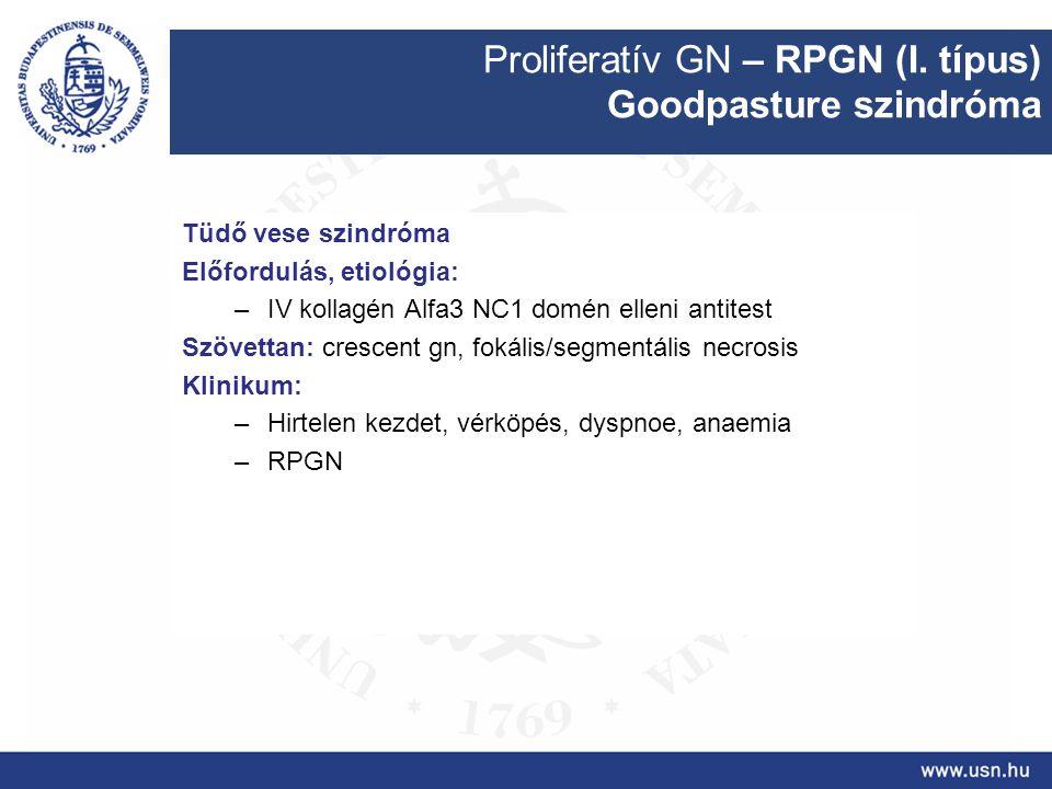 Proliferatív GN – RPGN (I. típus) Goodpasture szindróma Tüdő vese szindróma Előfordulás, etiológia: –IV kollagén Alfa3 NC1 domén elleni antitest Szöve