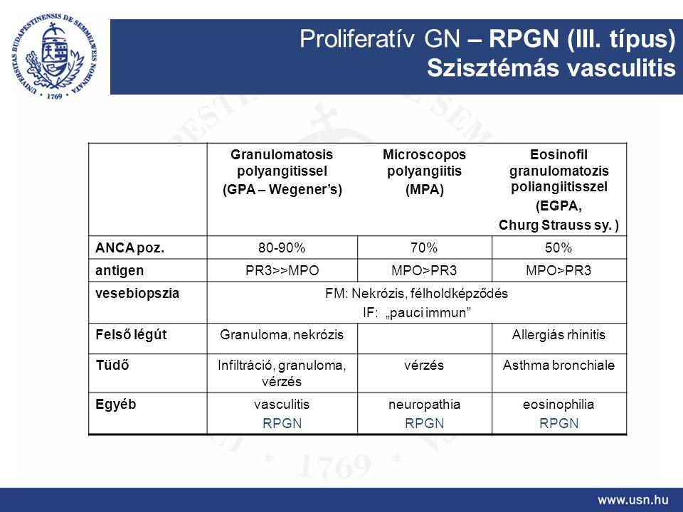 Proliferatív GN – RPGN (III. típus) Szisztémás vasculitis Granulomatosis polyangitissel (GPA – Wegener's) Microscopos polyangiitis (MPA) Eosinofil gra