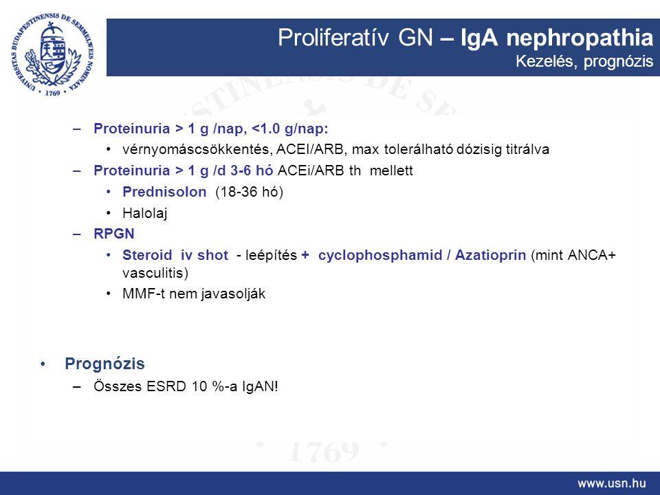 Proliferatív GN – IgA nephropathia Kezelés, prognózis –Proteinuria > 1 g /nap, <1.0 g/nap: vérnyomáscsökkentés, ACEI/ARB, max tolerálható dózisig titr