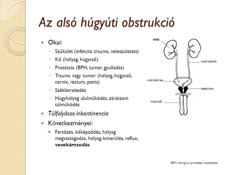 Az alsó húgyúti obstrukció diagnosztikája Anamnézis: ◦ Urológiai anamnézis, tünetek (láz!, vizeletcsípés!), időtartam, gyógyszerek, idegentest lehetősége Fizikális vizsgálat ◦ Hímvessző (phimosis, tumor), húgycső, prosztata, alhas (húgyhólyag) Laborok ◦ Vizelet (ha nyerhető), CRP, FVS, kreatinin, GFR Ultrahang