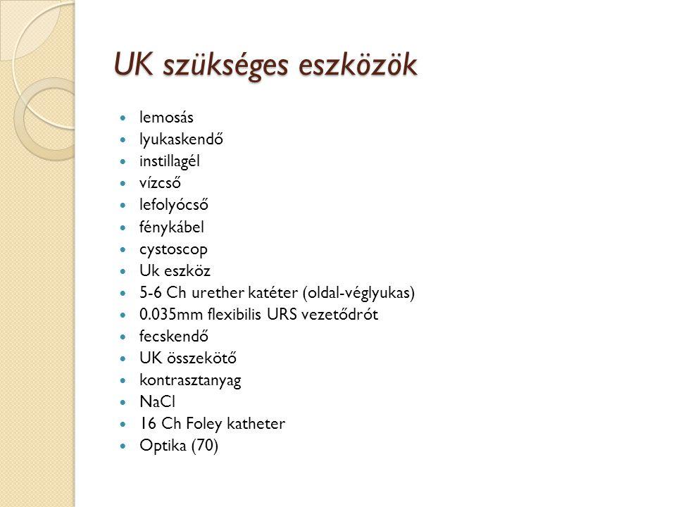 UK-hoz szükséges eszközök