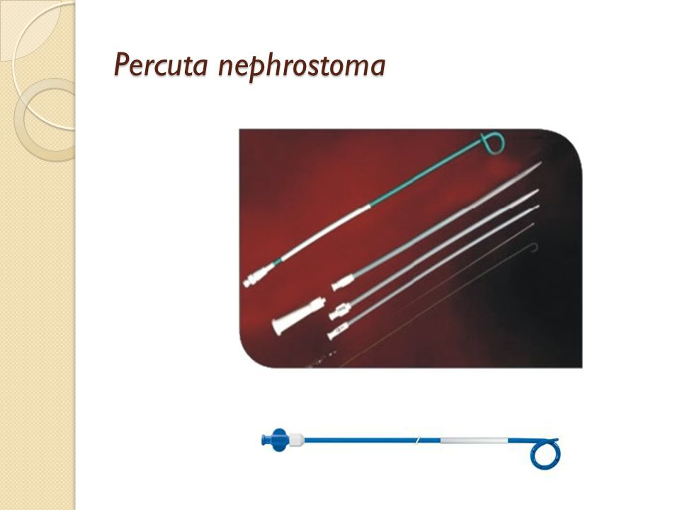 Percuta nephrostoma