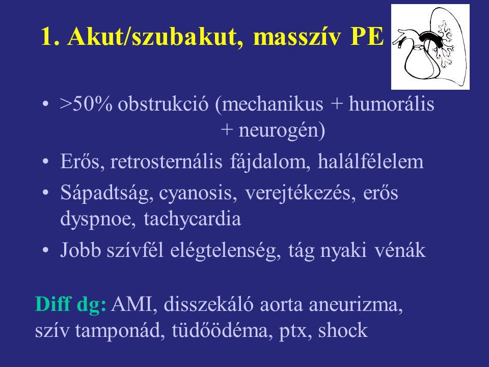 1. Akut/szubakut, masszív PE >50% obstrukció (mechanikus + humorális + neurogén) Erős, retrosternális fájdalom, halálfélelem Sápadtság, cyanosis, vere