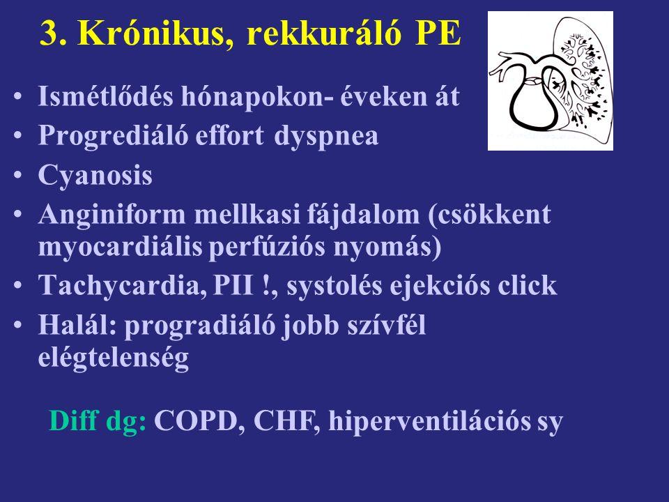 Mellkas rtg és EKG Rtg%EKG% Tág PA50ST depressio13-18 Magas rekesz44Sinus tachycardia80 Mellkasi fluidum23Negativ T V 2-3 32-49 Tág RA vagy RV17SV arrhythmia17 Infiltrátum16S I,Q III,negativ T III 12-18 Atelektáziás csík13RBBB6-47 Lokális oligemia6P-pulmonale5-10