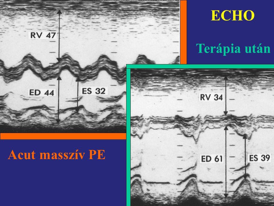 Acut masszív PE Terápia után ECHO