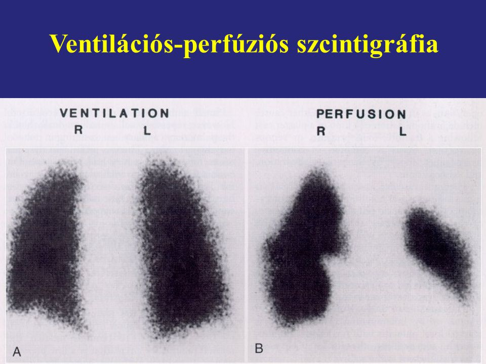 Ventilációs-perfúziós szcintigráfia