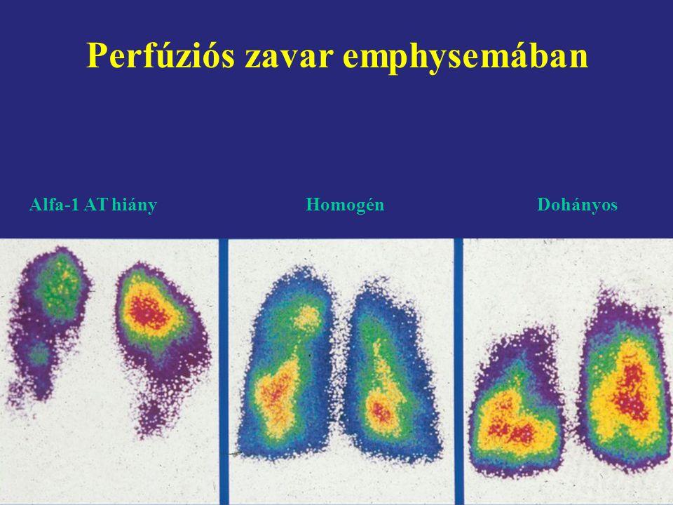 Perfúziós zavar emphysemában Alfa-1 AT hiány HomogénDohányos