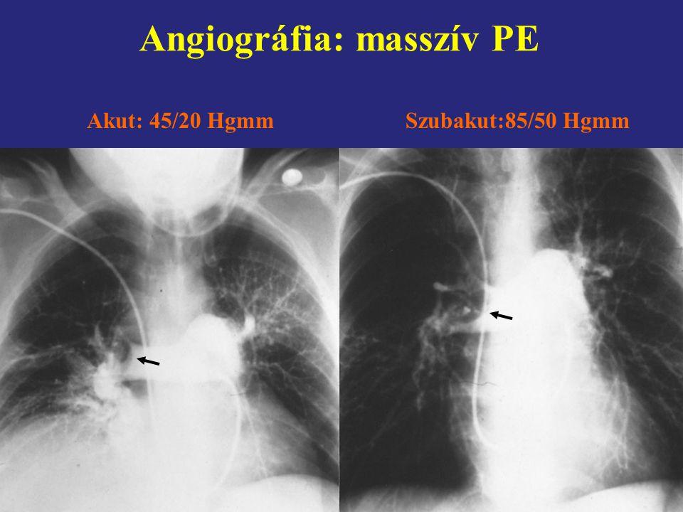 Angiográfia: masszív PE Akut: 45/20 HgmmSzubakut:85/50 Hgmm