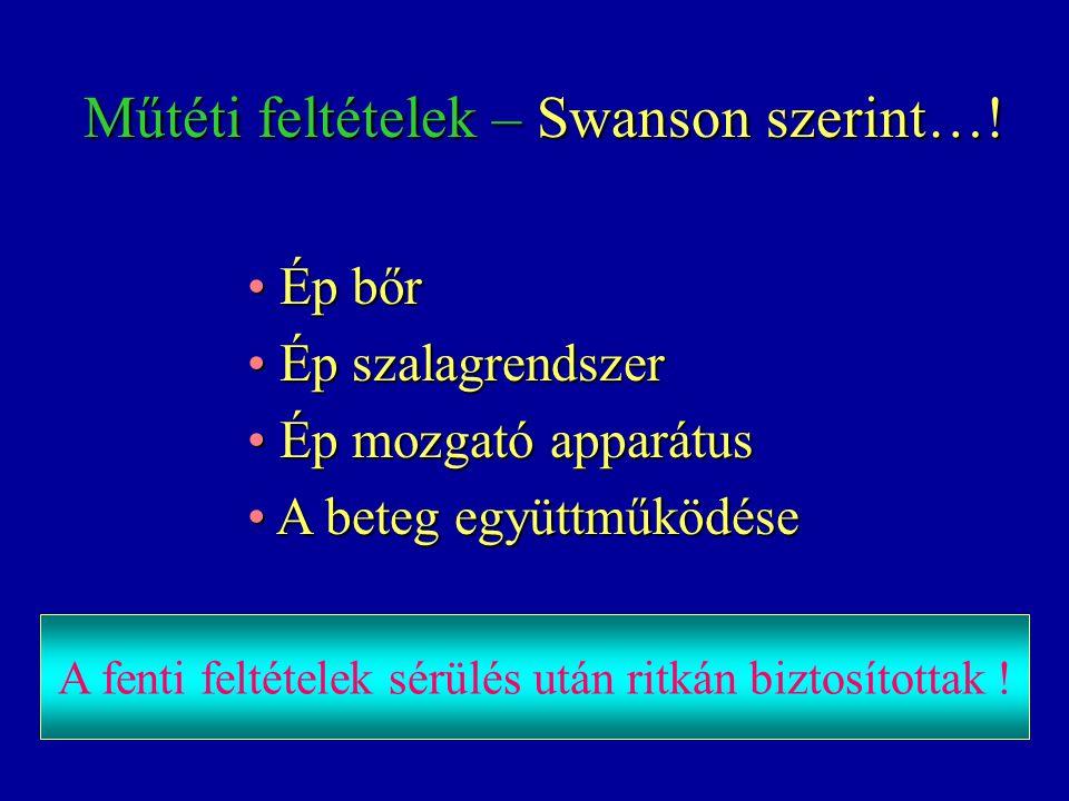 Műtéti feltételek – Swanson szerint…! Műtéti feltételek – Swanson szerint…! Ép bőr Ép bőr Ép szalagrendszer Ép szalagrendszer Ép mozgató apparátus Ép