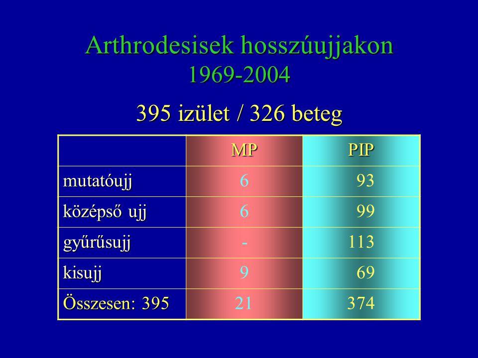 Arthrodesisek hosszúujjakon 1969-2004 MPPIP mutatóujj6 93 középső ujj 6 99 gyűrűsujj-113 kisujj9 69 Összesen: 395 21374 395 izület / 326 beteg
