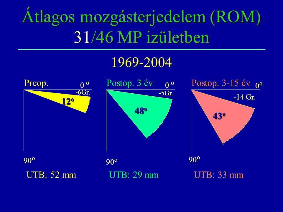 Átlagos mozgásterjedelem (ROM) 31/46 MP izületben Preop. Postop. 3-15 év Postop. 3 év 0 o 0o0o0o0o -6Gr. 90 o -5Gr. 43Gr. -14 Gr. UTB: 52 mm UTB: 33 m