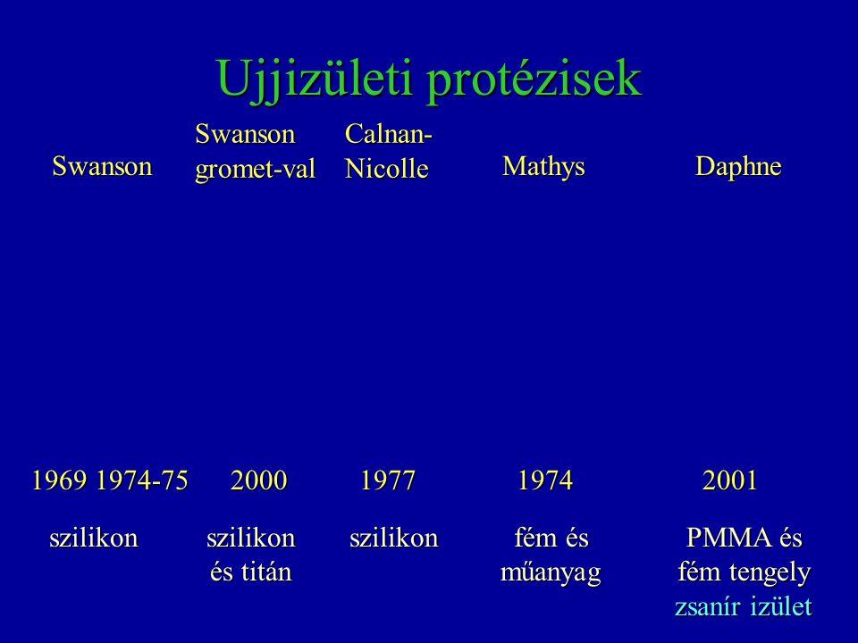 Ujjizületi protézisek 1969 Mathys 197719741974-75 Swanson Calnan-NicolleSwansongromet-val 2000 Daphne 2001 szilikon szilikon és titán szilikon fém és