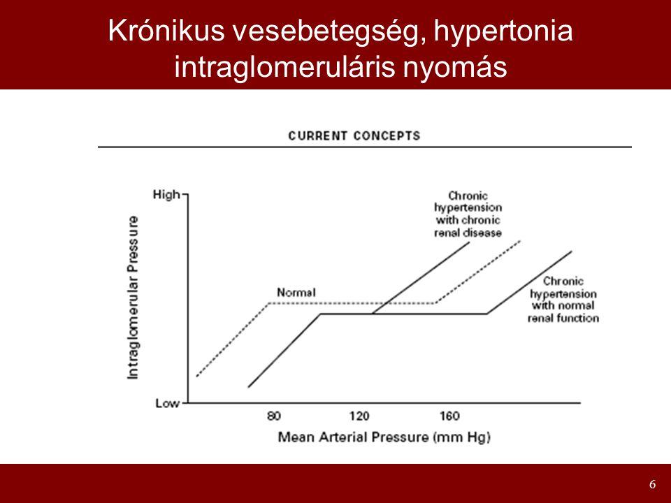 7 Normal Kidney A vesekárosodás mechanizmusa hypertoniában B l o o d P r e s s u r e www.hypertensiononline.org Glomerular hypertension Hyperfiltration Glomerular barrier dysfunction Proteinuria Mesangial cell hyperplasia Intrarenal inflammatory processes Endothelial dysfunction VSMC proliferation