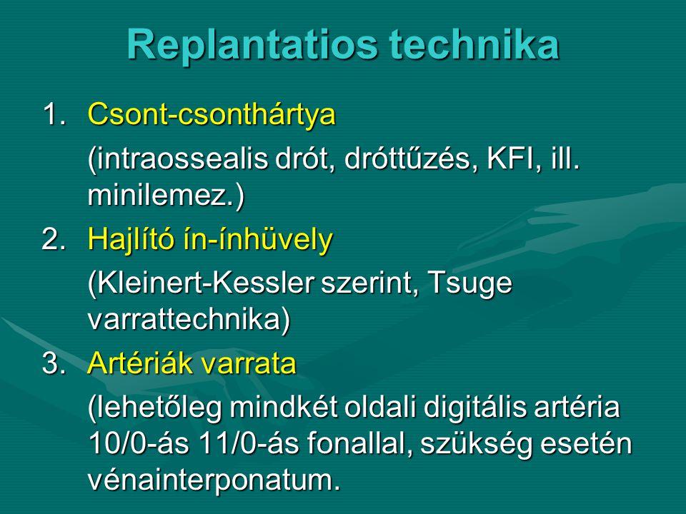 Replantatios technika 1.Csont-csonthártya (intraossealis drót, dróttűzés, KFI, ill.
